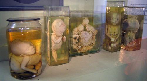 Museo de Historia de la Medicina Myuttera